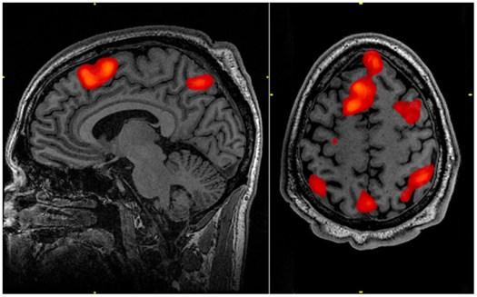 fMRI of brain