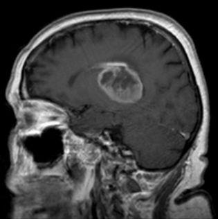 Image result for glioblastoma multiforme