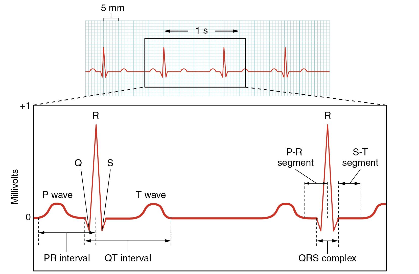 Att Ls Electrocardiogram