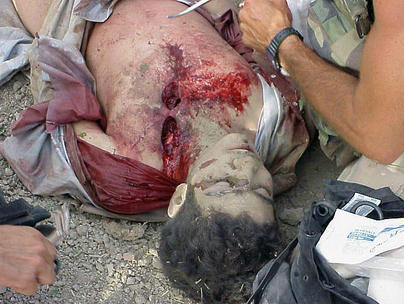 File:Omar Khadr getting battlefield first aid.jpg