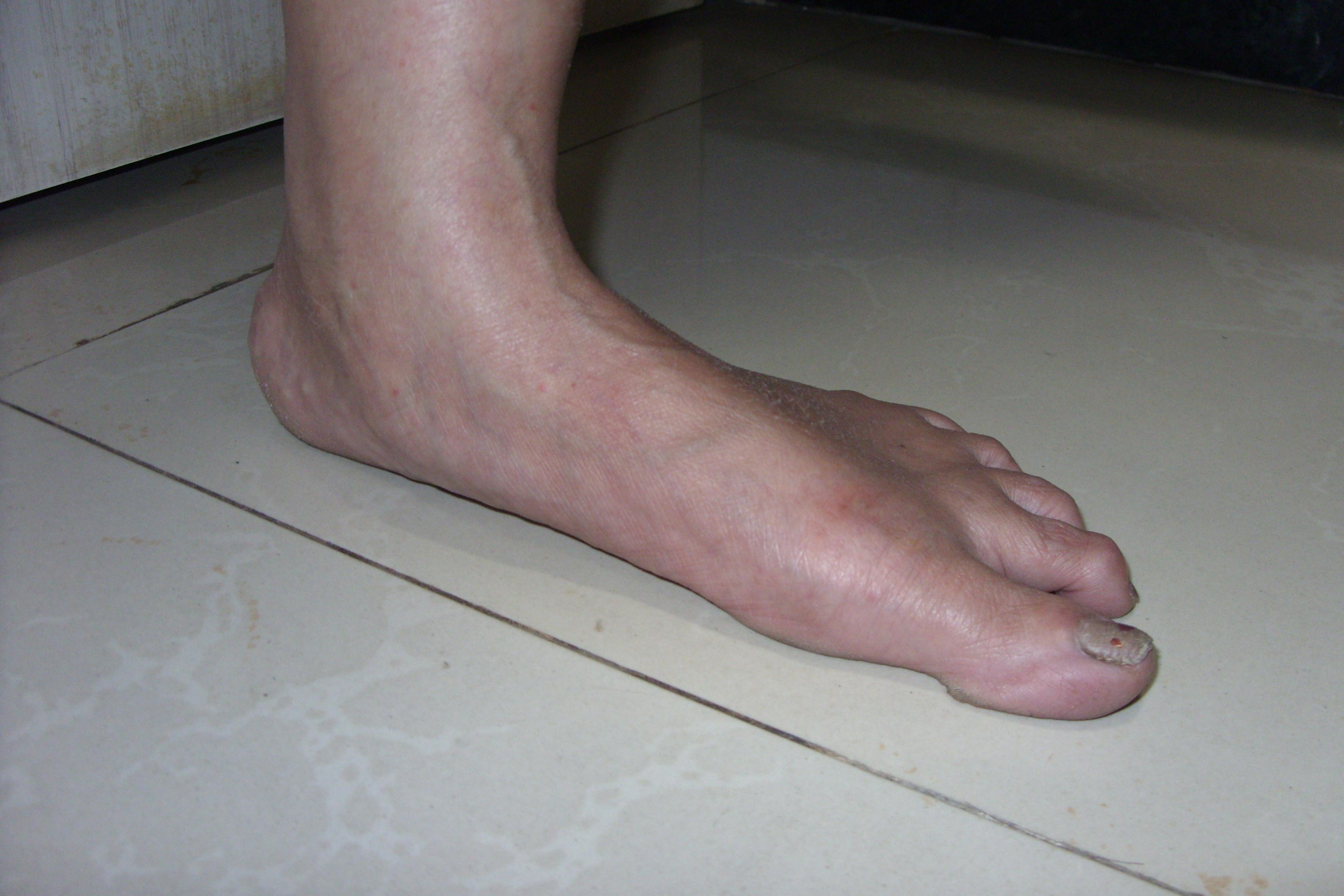 flat feet surgery