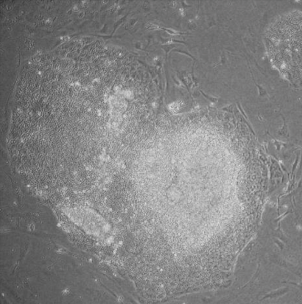 Induced pluripotent stem cell - Wikipedia