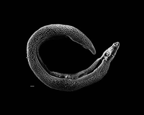 File:Schistosoma parasita.jpeg