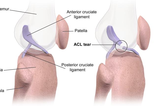 Diagram of an ACL Tear