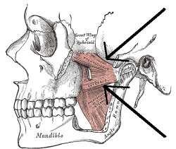 TMJ Lateral Pterygoid