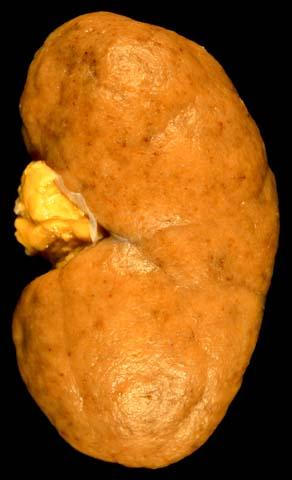 Diffuse proliferative lupus nephritis