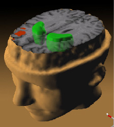 The Striatum; part of the basal ganglia; neura...