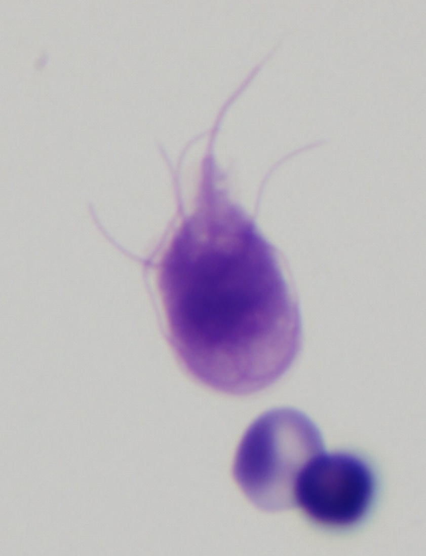 Giardia lamblia cytology closeup Dogs That Look Similar To Pitbulls