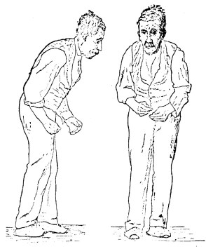 Sketch by Sir William Richard Gowers of a man with Parkinson disease in 1886