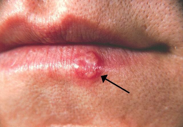 labios hinchados y rojos