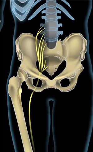 Sciatic nerve  Wikipedia