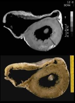 Arrhythmogenic right ventricular cardiomyopathy