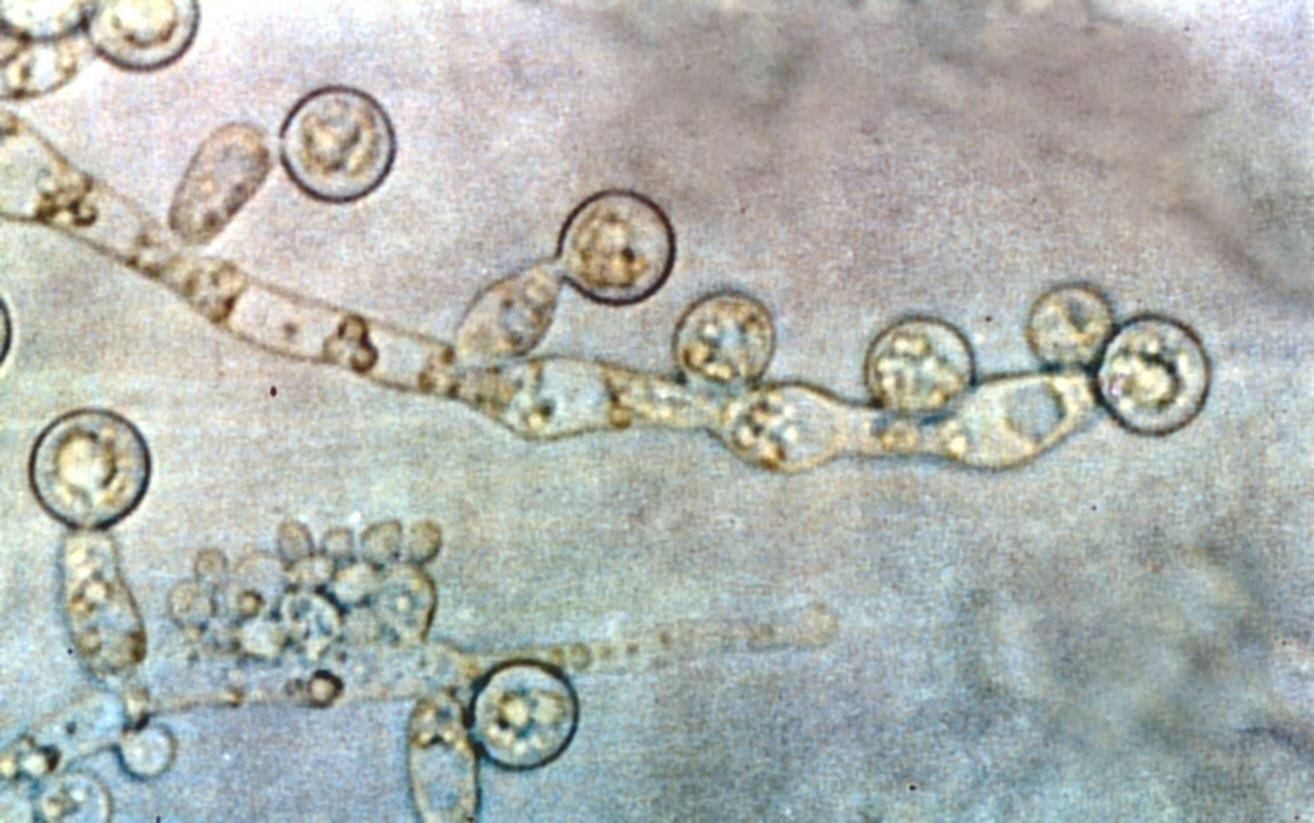 Description Candida albicans 2.jpg