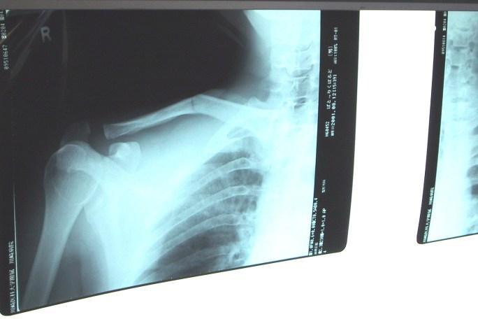Radiografia de fratura da clavícula