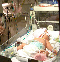 English: new-born baby on life support machine...