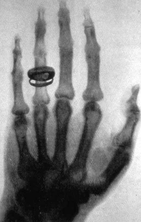 hand of von Kolliker made by Roentgen