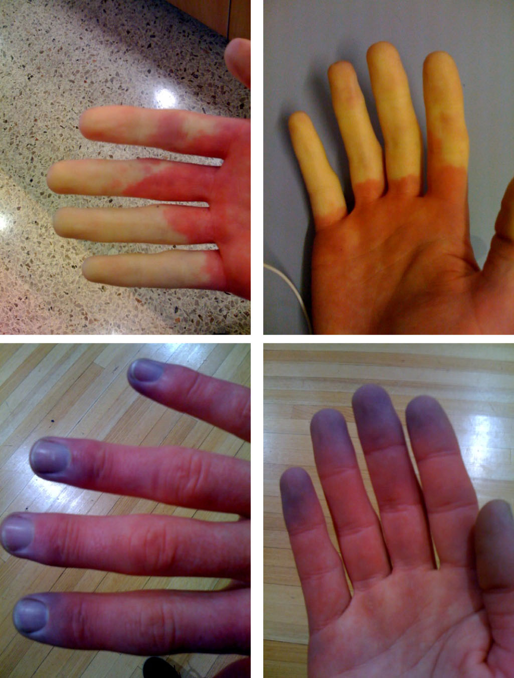 Always Cold Hands And Feet Can Mean You Have Raynaud S
