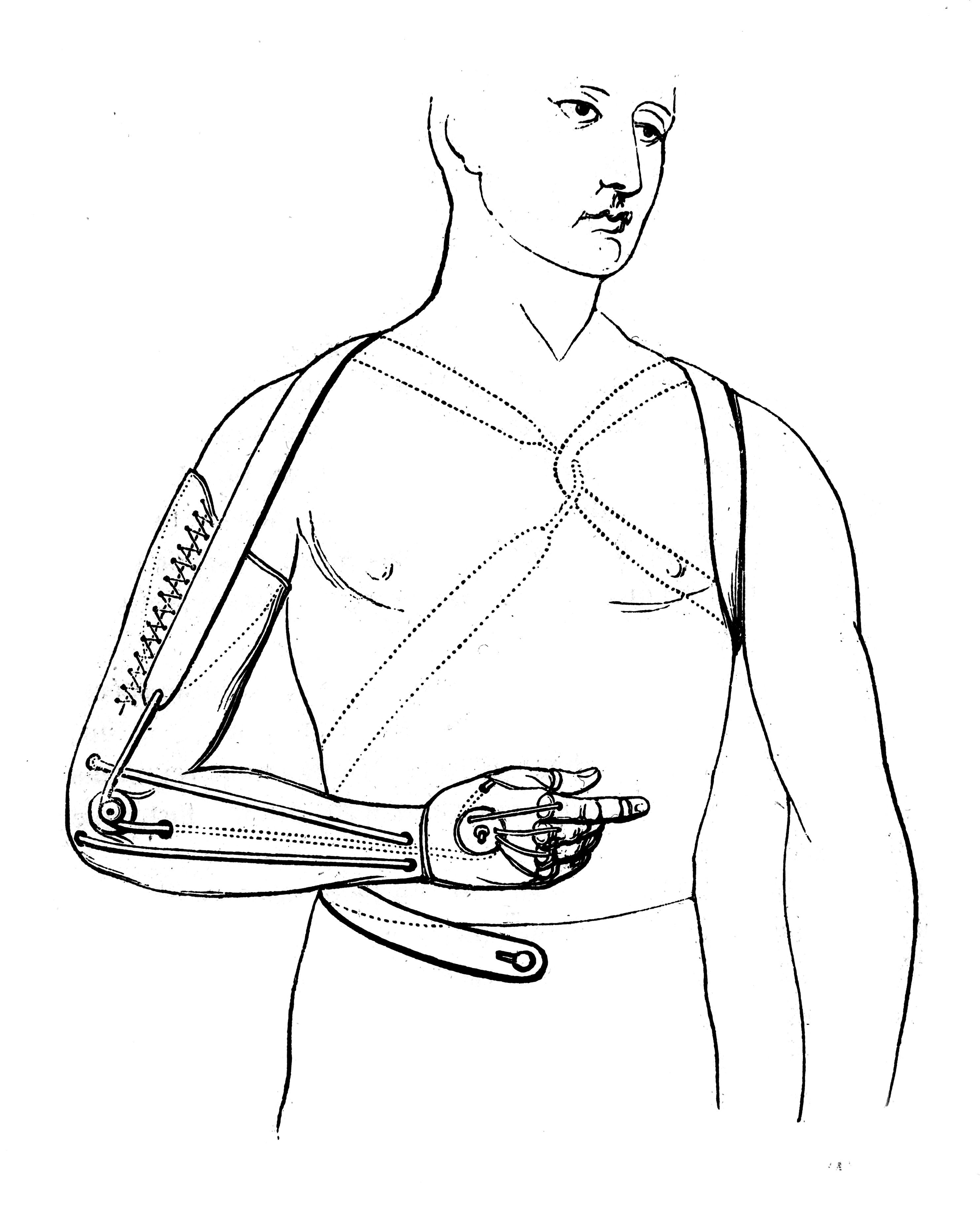 File Artificial Arm Designed By De Beaufort 19th Century