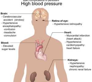 Main complications of persistent high blood pr...