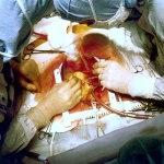 Cardiac Surgery Wikipedia