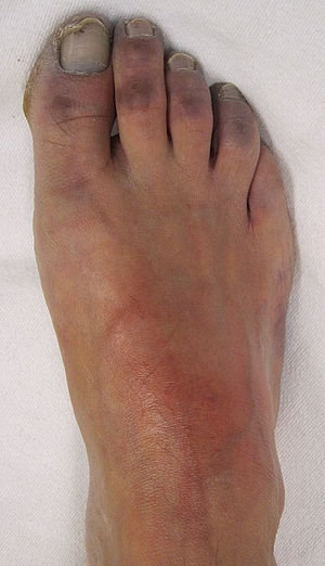 English: Vascular of the toes with the charact...