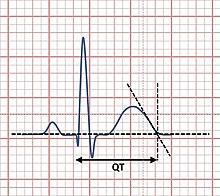 Short QT syndrome - Wikipedia