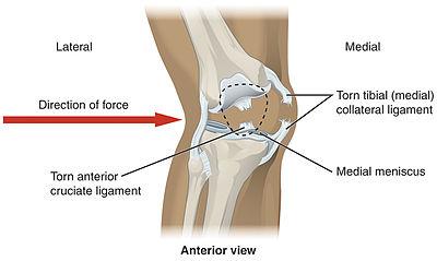 400px 918 Knee Injury - Rodilla humana Anatomía y Definición