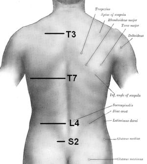 Orientation of vertebrae