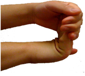 Carpal tunnel syndrome prevention, stretching ...