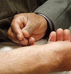 Acupuncture1-1.jpg
