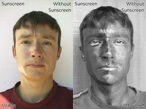 Sunscreen SPF protection skin cancer