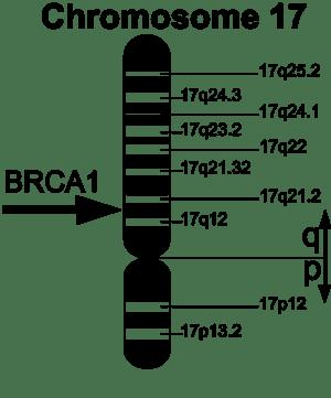 BRCA1-Gene located on chromosome 17. English v...