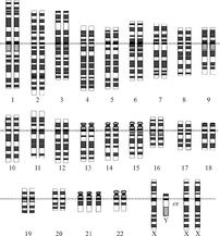 Karyotype for trisomy Down syndrome.