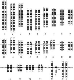 Down Syndrome Karyotype. from en: with same fi...