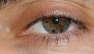 English: An example of giadoro eye colour