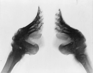 X-ray of bound feet, China
