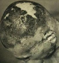 The head of the crew of Daigo Fukuryu-maru