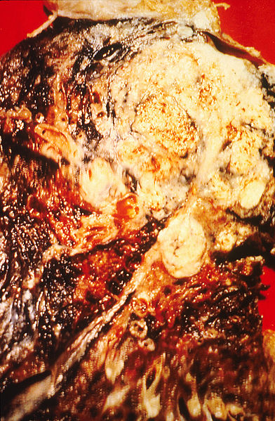 File:Cancerous lung.jpg