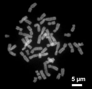 Deutsch: Metaphasechromosomen aus einer weibli...