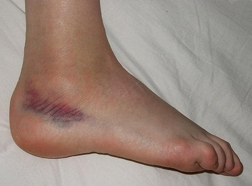 Photo of a sprained foot with a bruise