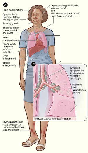 English: Signs and symptoms of sarcoidosis