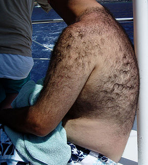 English: Androgenic body hair, photograph take...