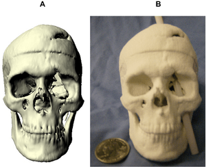 (Left) Virtual model of Phineas Gage's skull. ...