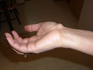 This is a ganglion cyst on the inner right wri...