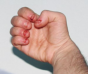 English: Dermatophagia - extreme nail biting /...