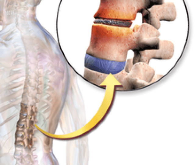 Back Pain Can Be Caused By The Vertebrae Compressing The Intervertebral Discs