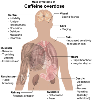 English: Main symptoms of Caffeine overdose (S...