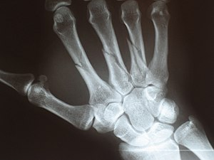 Multiple fractures of the metacarpals (aka bro...
