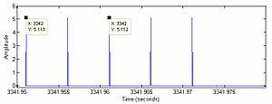 Staccato aerophagia waveform. Its characterise...