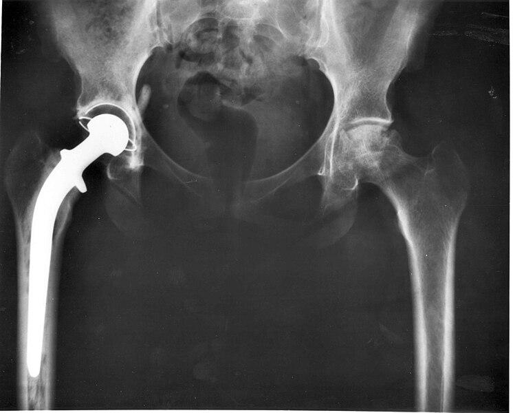 File:Hip replacement Image 3684-PH.jpg